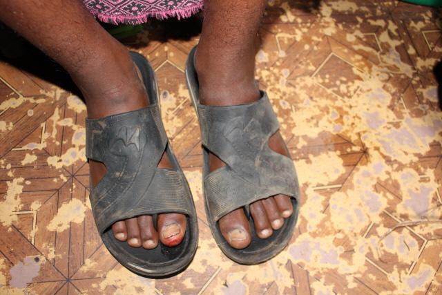 6·25전쟁 참전용사 3세 다윗 에셰투 군의 발은 낡은 신발 탓에  피가 맺혔다.