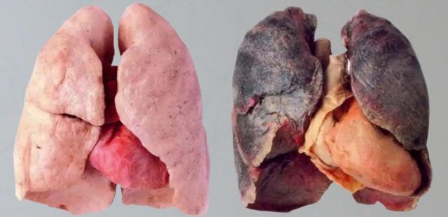 비흡연자의 건강한 폐(왼쪽)와 장기간흡연자의 폐